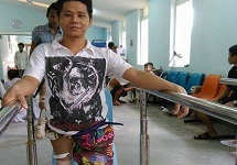 Kyaw Ye Aung trying out his new prosthetic legs at a hospital in Myanmar.